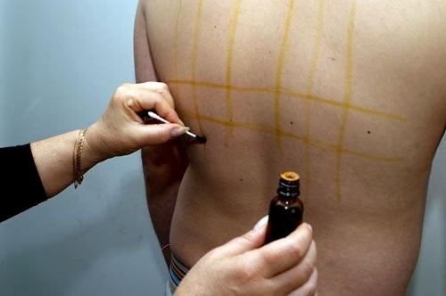 Помогает ли йодовая сетка при остеохондрозе